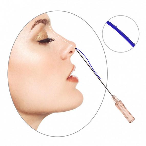 Безоперационная ринопластика носа нитями